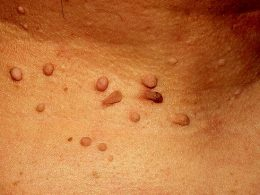 This Simple At Home Trick Can Easily Remove Skin Tags